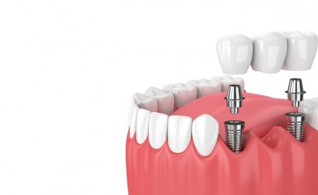 Implantes Dentales - Estudio Dental Villar